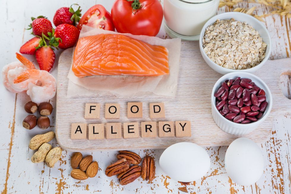 "A food allergens image showing different types of allergic food with the letters ""Food Allergy."""