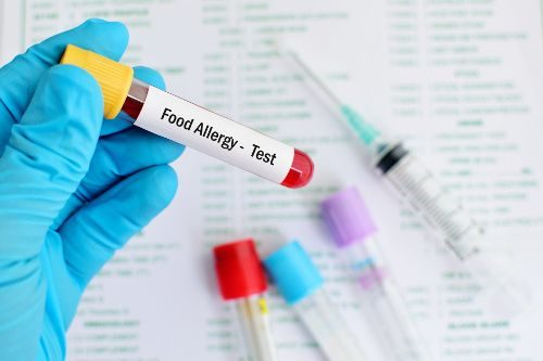 "A food allergens image showing a blood sample tube labelled ""Food Allergy - Test."""
